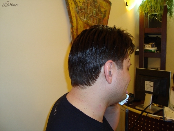 Безоперационное замещение волос сколько